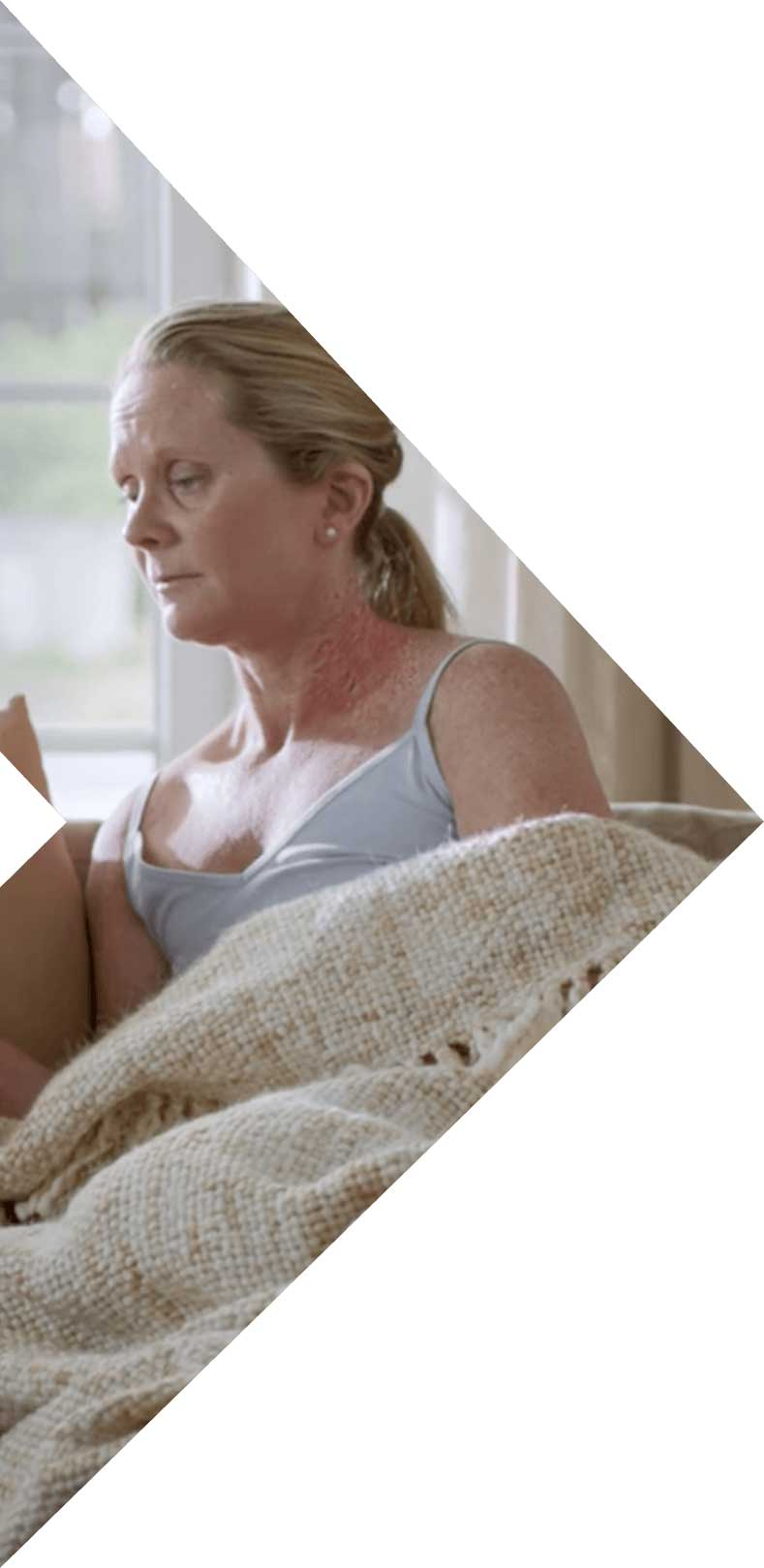 Woman suffering from atopic dermatitis inflammation